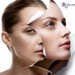 La fototerapia como ayuda al acné