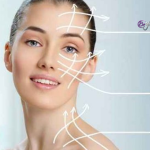 Hilos tensores para el rejuvenecimiento facial