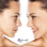 Tratamientos de rejuvenecimiento facial ultra rápidos