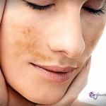Combatir las manchas en el bigote: melasma
