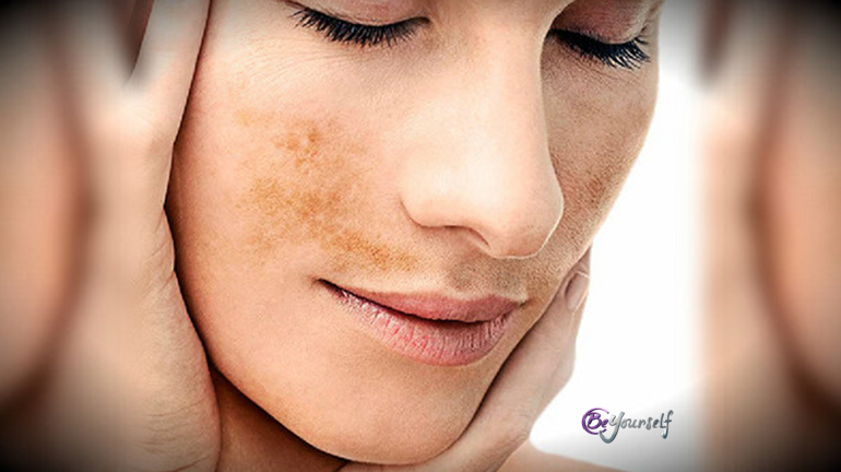 melasma beyourself