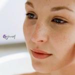 Soluciones a las rojeces de la piel